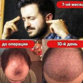 Уникальный безоперационный метод пересадки волос, в г.Уральск