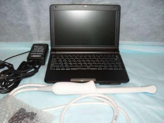 УЗИ – аппарат портативный SW-1200A (laptop/notebook) в Ханты-Мансийске Фото 3